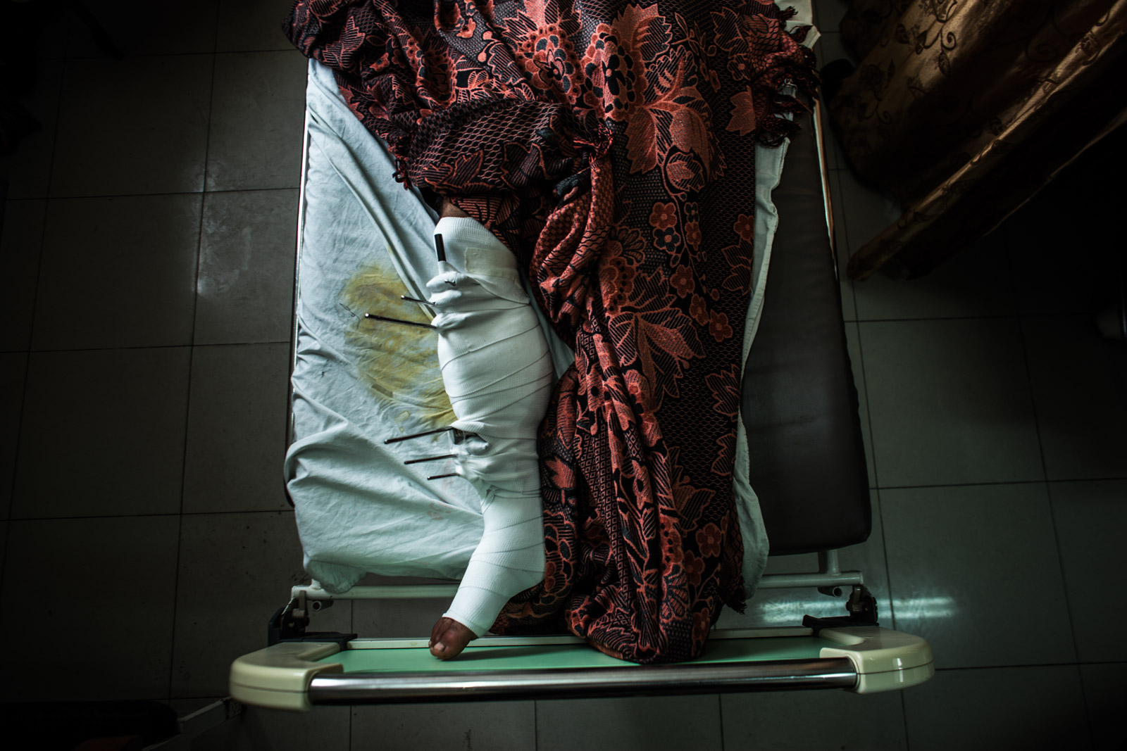 Gaza City, Gaza - December 4, 2012: Leg of an injured Palestinian hospitalized in Shifa hospital in Gaza City. Between 20 and 25 percent of non-lethal injuries related to bombings and air strikes result in limb amputation.