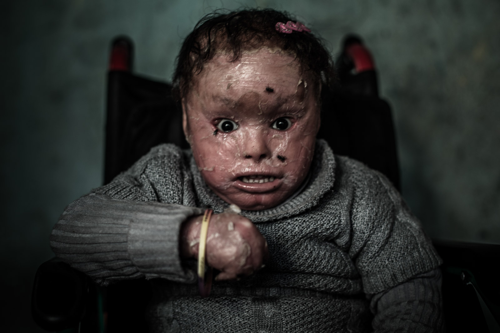 Beit Hanoun, Gaza - December 12, 2012: Shahed is sitting in her wheelchair in Beit Hanoun, Gaza Strip. She suffers a genetic skin disease known as a Harlequin Ichthyosis, along with irregular growth of her leg. While pregnant, Shahed's mother was heavily exposed to the white phosphorus chemicals used by the Israeli Air Force attacks on Gaza Strip. After her birth, mother has abandoned her due to Shahed's medical condition and her father was killed during the Cast Lead military operation in Gaza. Her grandmother is only one taking care of Shahed. She runs an electrical fan next to Shahed's bed to prevent flies from feeding on her dead skin, especially during the summer season.